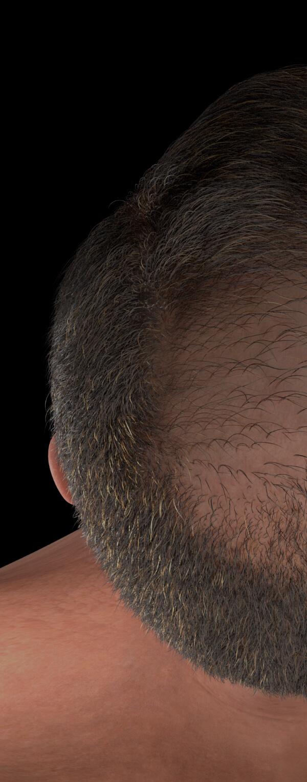 Patient de la Clinique Chloé aux prises avec une perte de cheveux avancée
