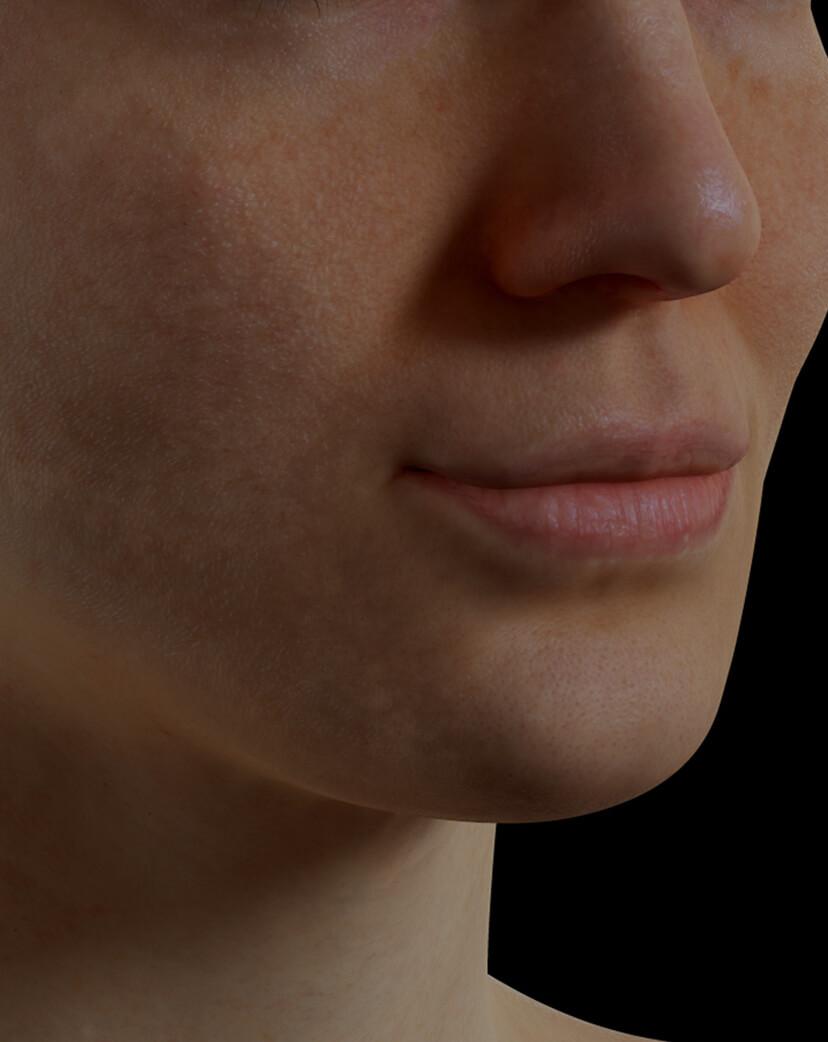 Patiente de la Clinique Chloé ayant des pores dilatés sur le visage traitée avec le laser fractionné