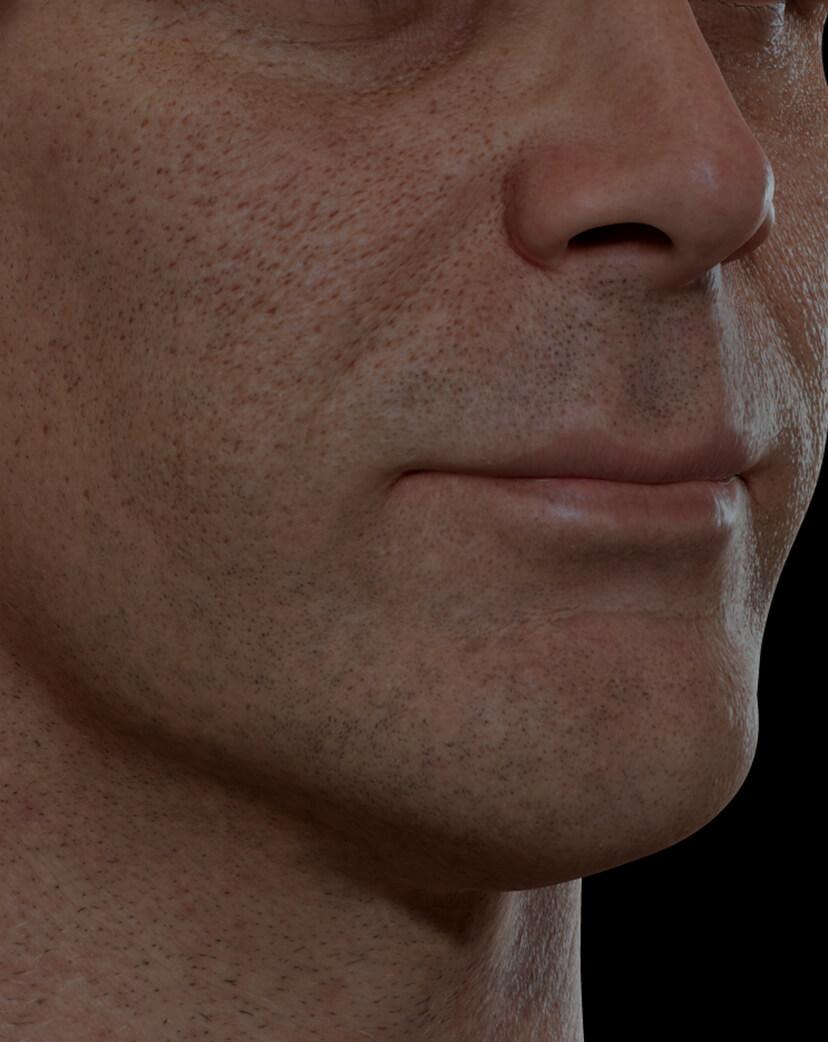 Patient de la Clinique Chloé ayant des pores dilatés sur le visage traité avec un peeling chimique