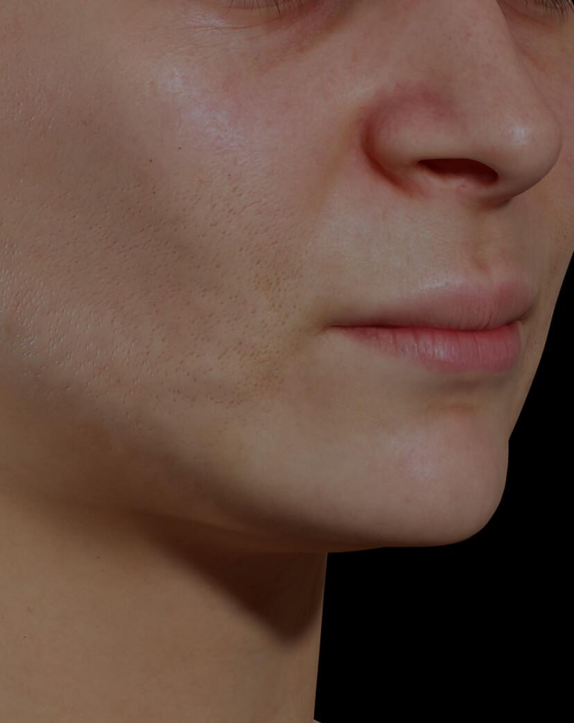Patiente de la Clinique Chloé ayant des pores dilatés sur le visage traitée avec le photorajeunissement IPL