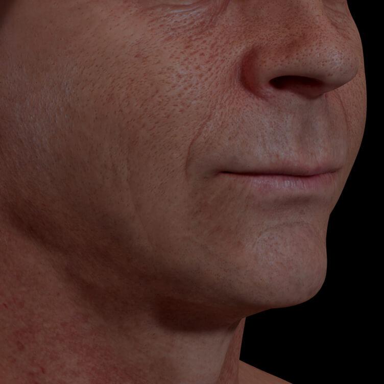 Patient de la Clinique Chloé ayant des pores dilatés sur le visage traité avec du microneedling
