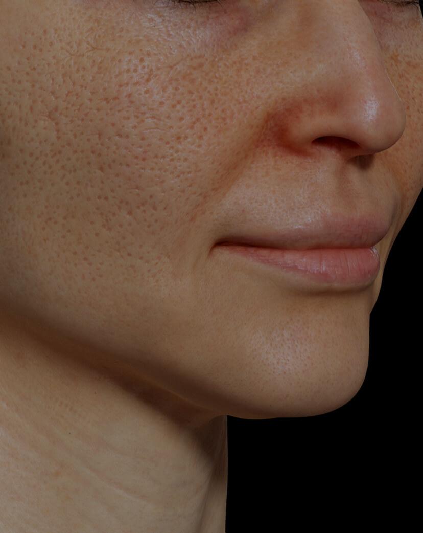 Patiente de la Clinique Chloé ayant des pores dilatés sur le visage traitée avec la radiofréquence fractionnée Venus Viva