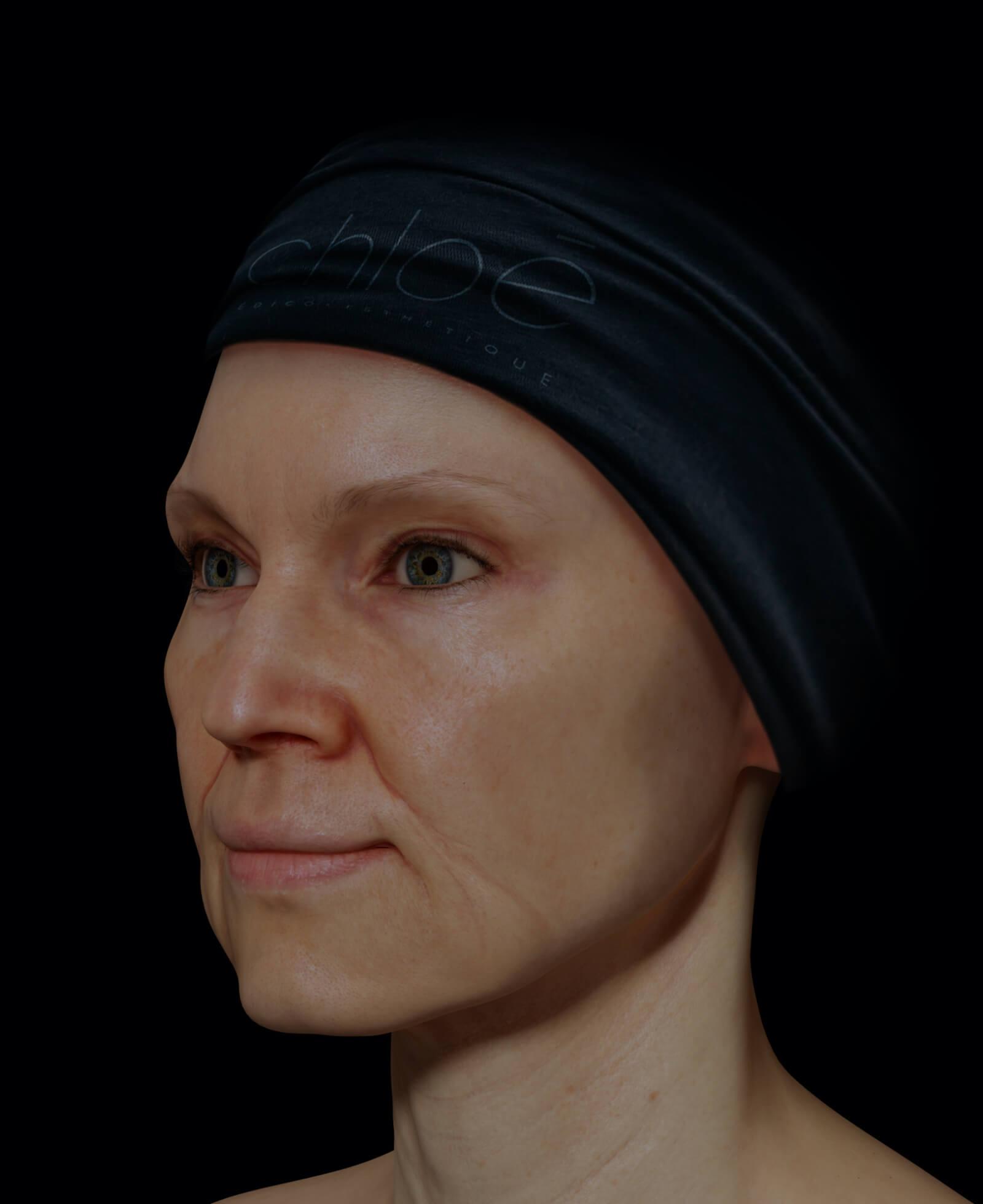 Patiente de la Clinique Chloé présentant des rides et fines ridules au niveau du visage