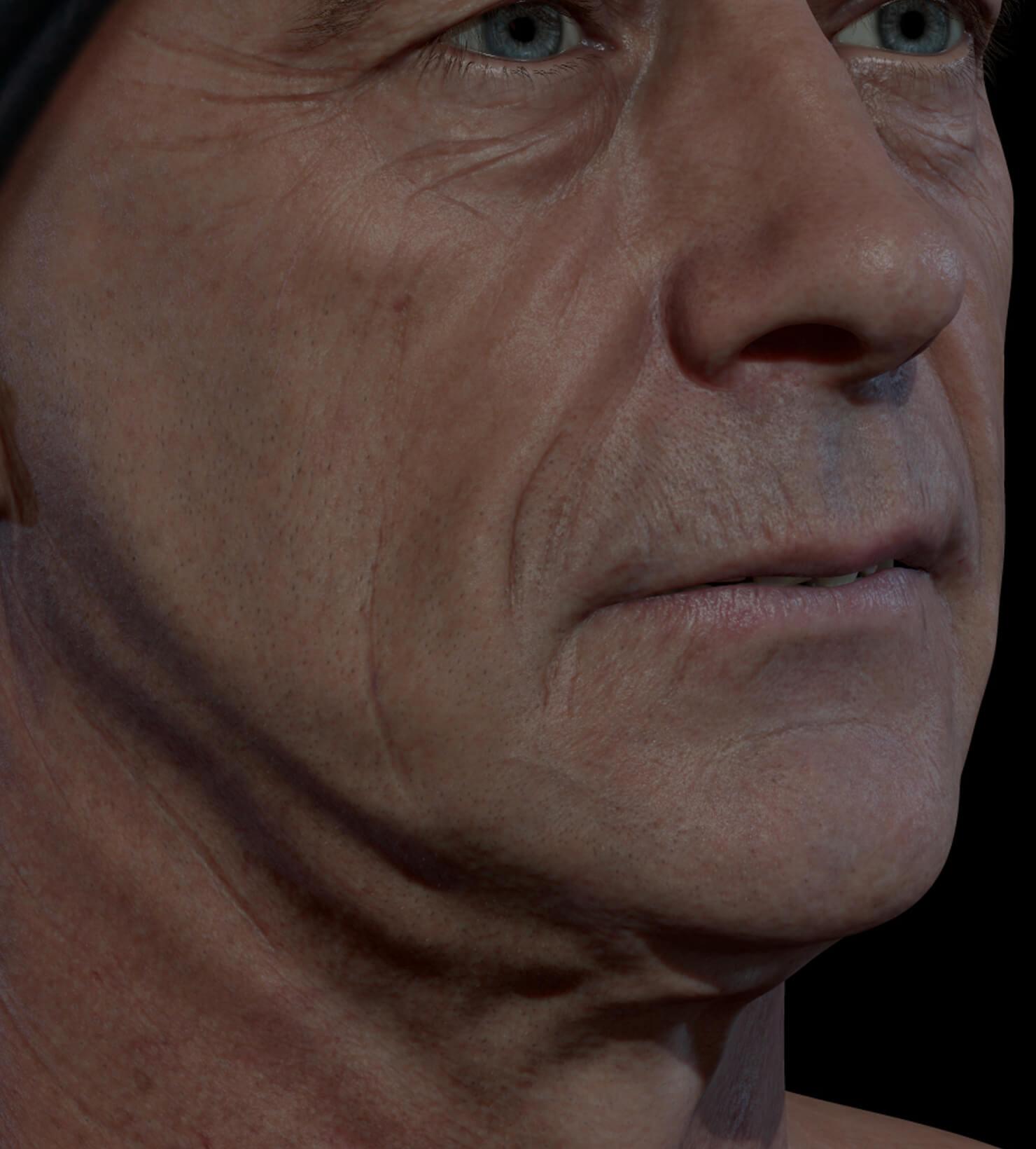 Patient de la Clinique Chloé présentant des rides et ridules sur le visage traité avec des injections d'agents de comblement