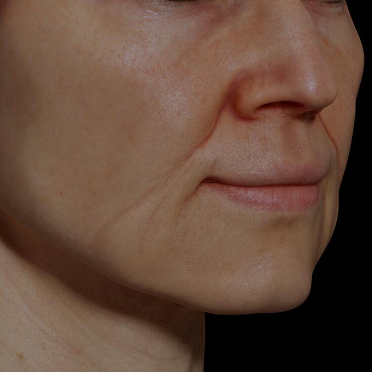 Patiente de la Clinique Chloé présentant des rides et ridules sur le visage traitée avec le laser Fotona 4D