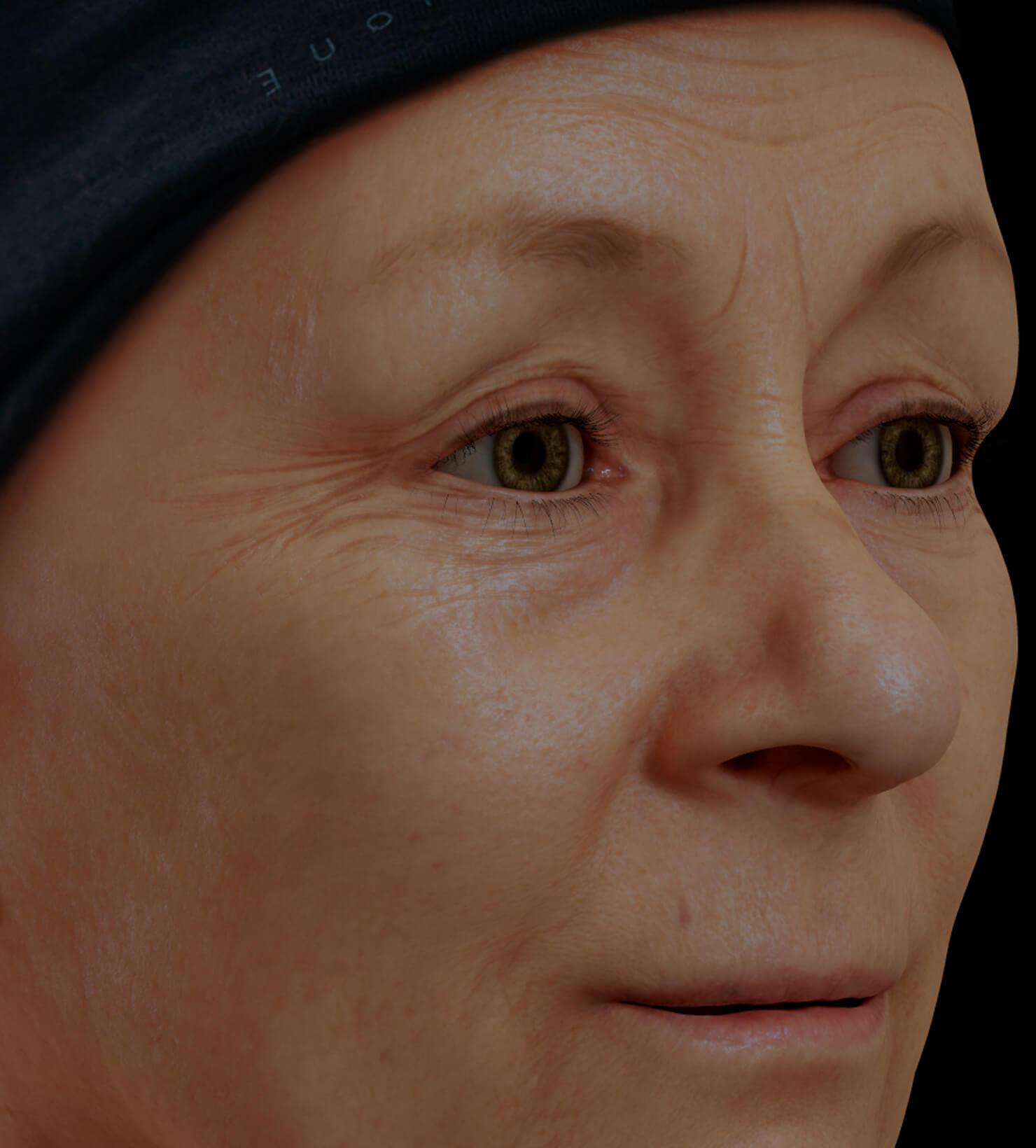 Patiente de la Clinique Chloé présentant des rides et ridules sur le visage traitée avec la mésothérapie
