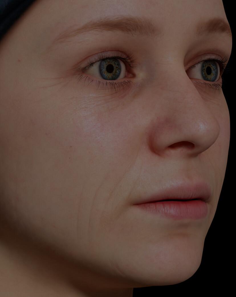 Patiente de la Clinique Chloé présentant des rides et ridules sur le visage traitée avec du microneedling