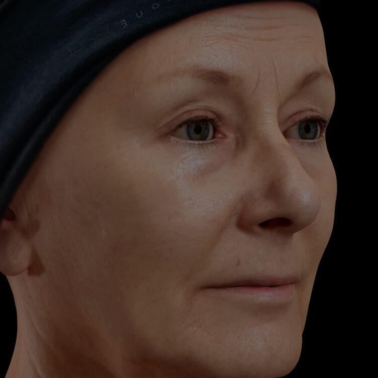 Patiente de la Clinique Chloé présentant des rides et ridules sur le visage traitée avec des injections de neuromodulateurs