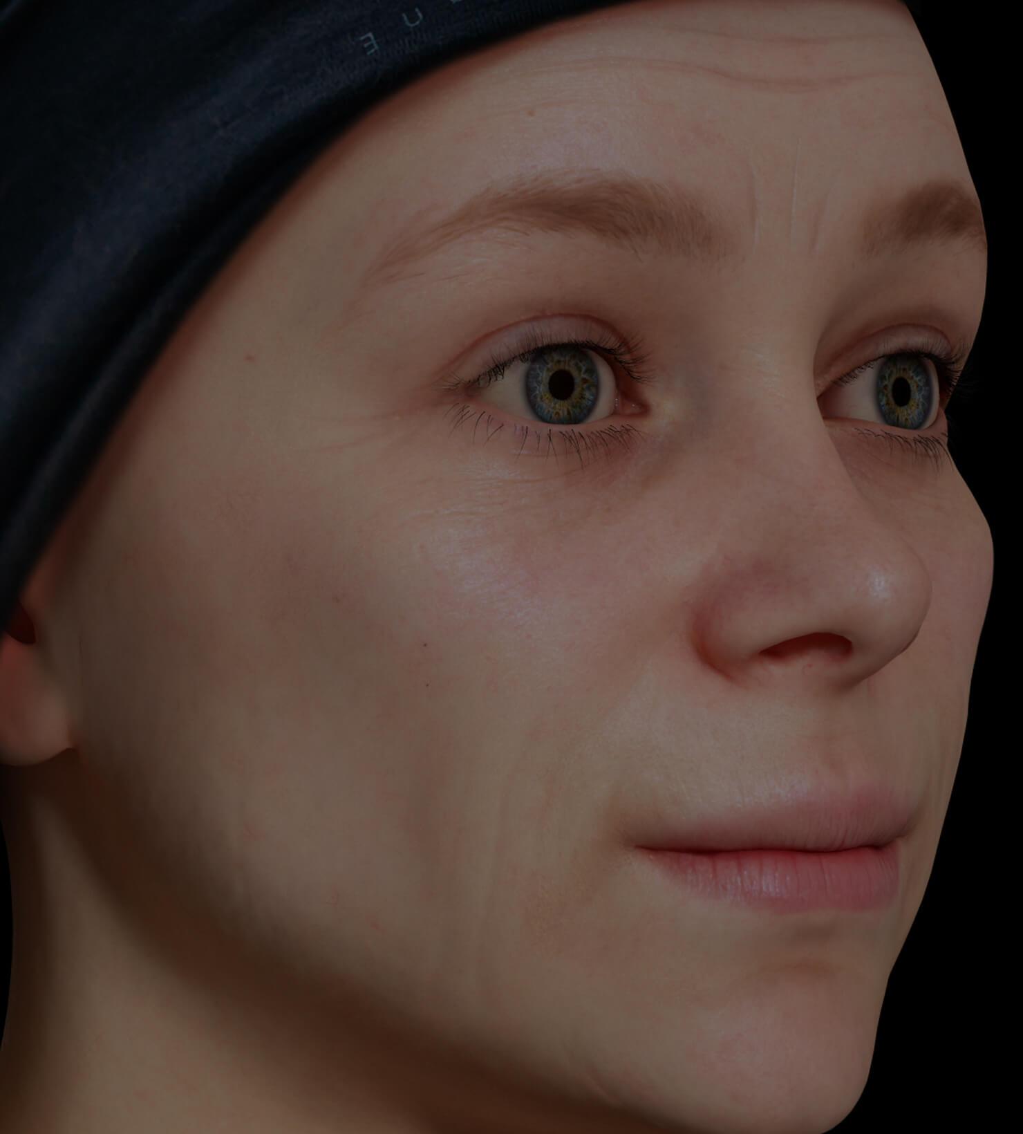 Patiente de la Clinique Chloé présentant des rides et ridules sur le visage traitée avec le photorajeunissement IPL