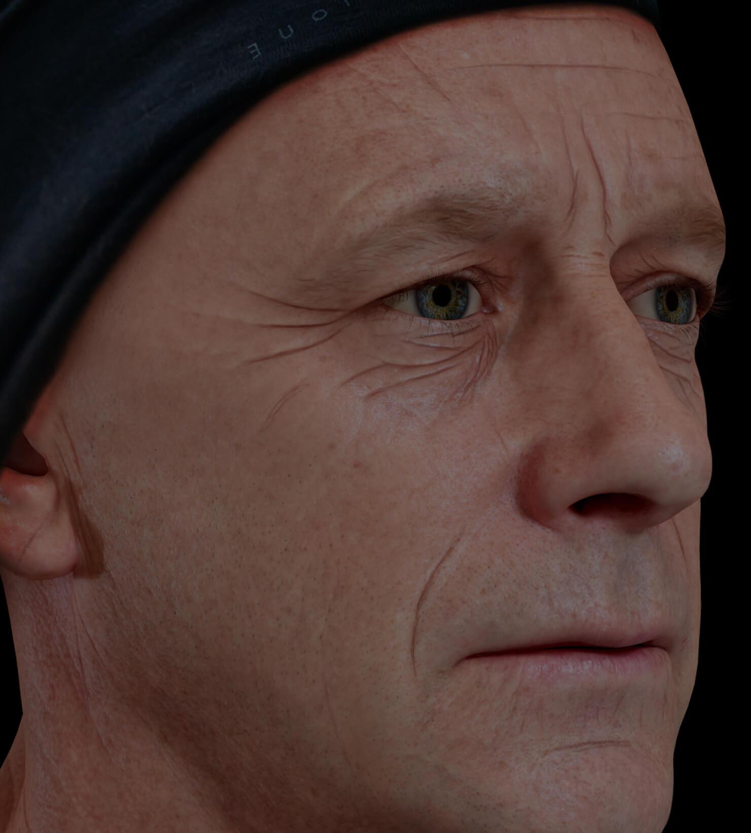 Patient de la Clinique Chloé présentant des rides et ridules sur le visage traité avec le plasma riche en plaquettes, ou PRP