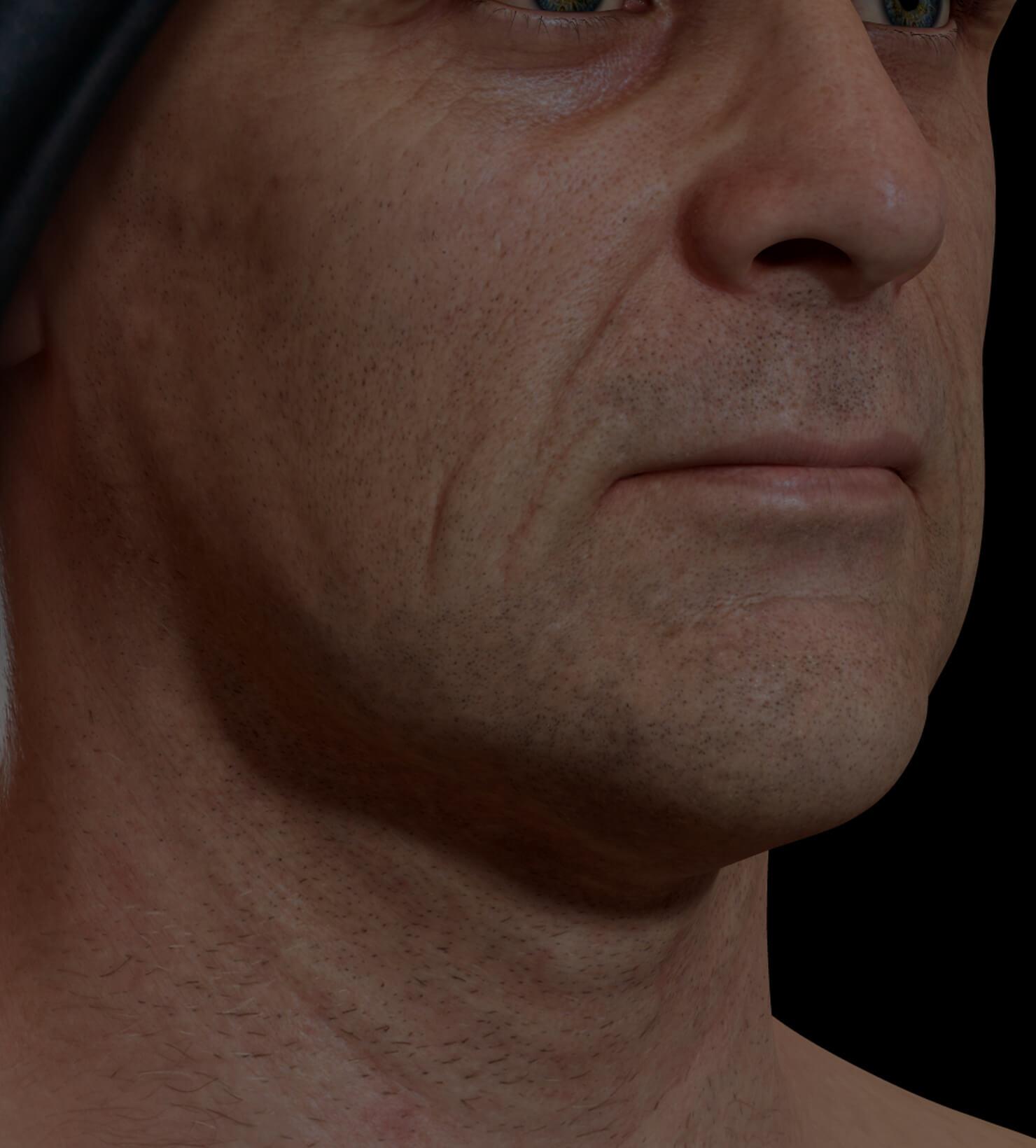 Patient de la Clinique Chloé présentant des rides et ridules sur le visage traité avec le Profound RF