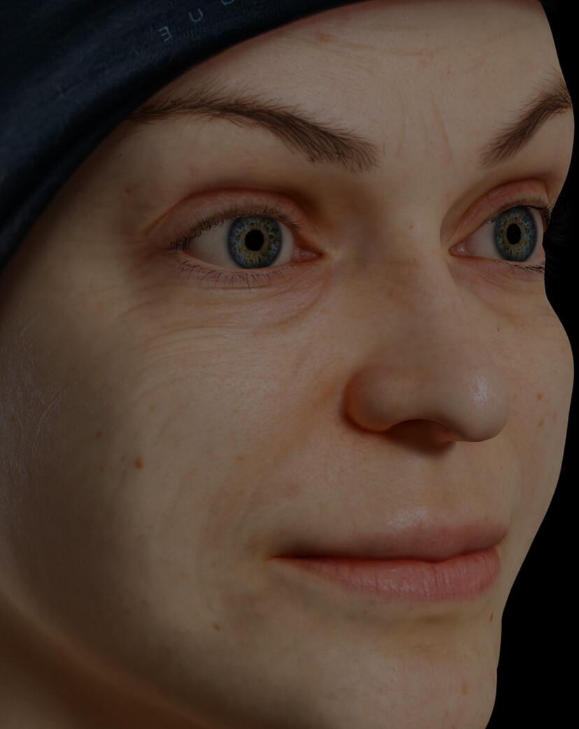 Patiente de la Clinique Chloé présentant des rides et ridules sur le visage traitée avec des injections de Skinboosters