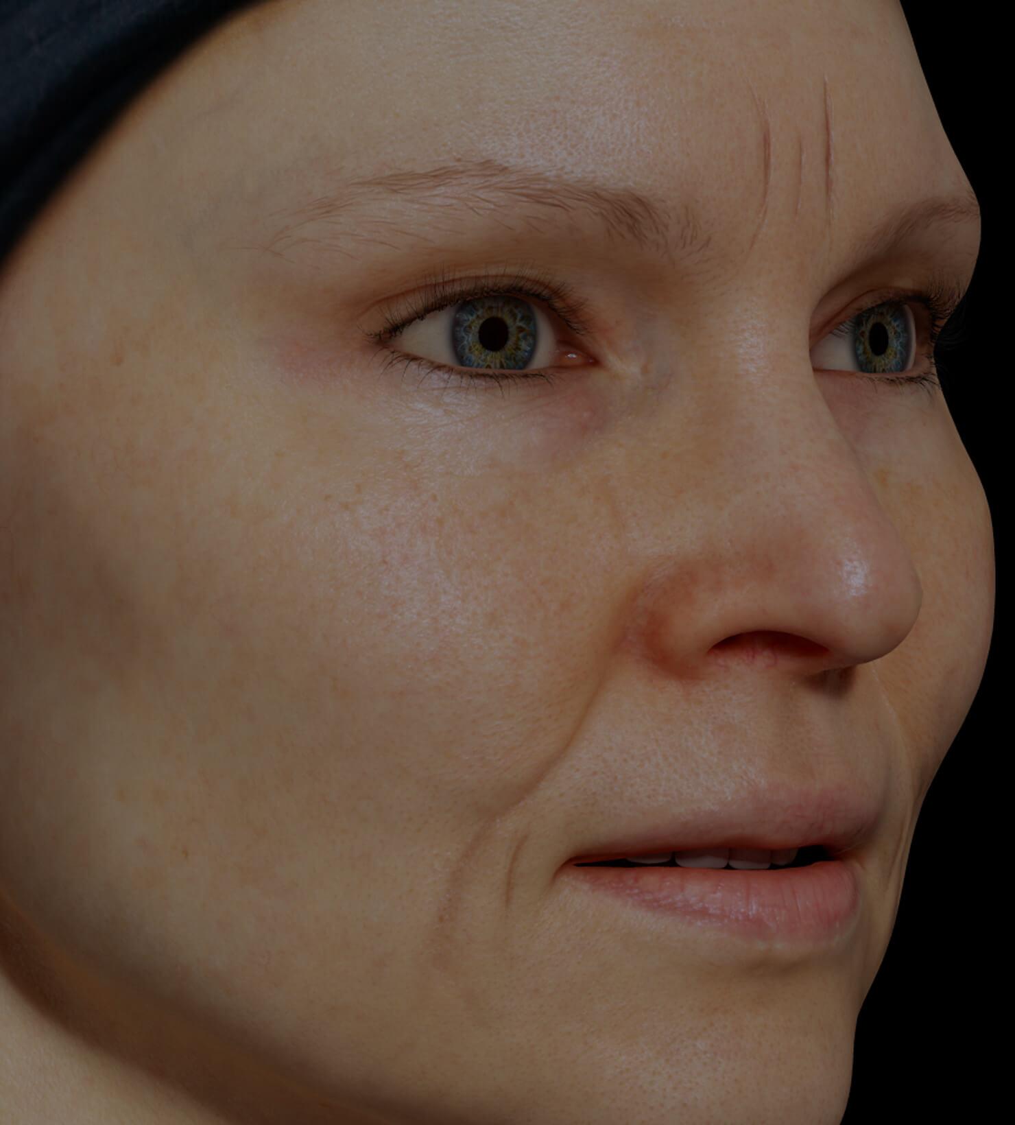 Patiente de la Clinique Chloé présentant des rides et ridules sur le visage traitée avec le Venus Legacy