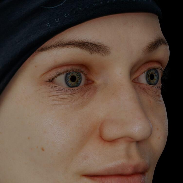 Patiente de la Clinique Chloé présentant des rides et ridules sur le visage traitée avec le Venus Viva