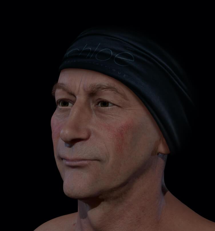 Patient de la Clinique Chloé présentant de la rosacée sur le visage