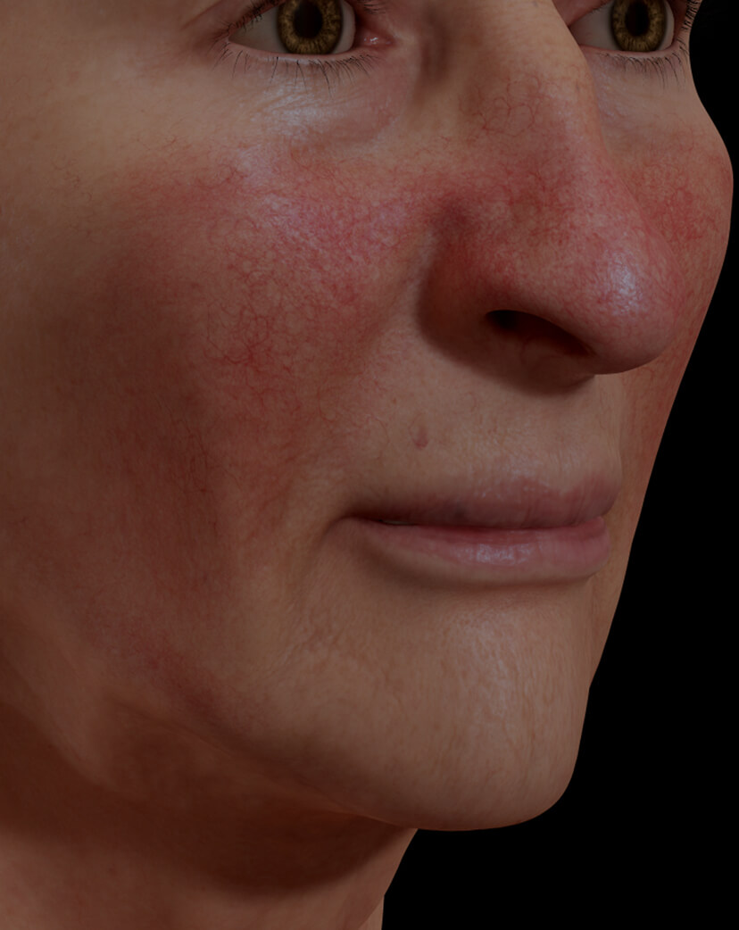 Clinique Chloé female patient with rosacea on her face treated with the IPL photorejuvenation