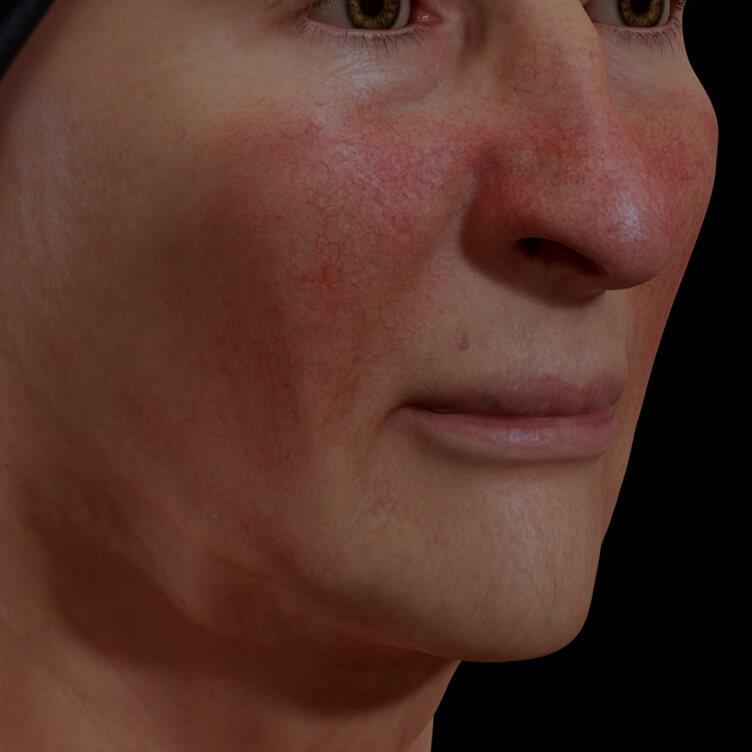 Patiente de la Clinique Chloé présentant de la rosacée sur le visage traitée avec le photorajeunissement IPL
