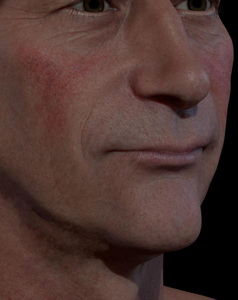Patient de la Clinique Chloé présentant de la rosacée sur le visage traité avec le laser à colorant pulsé Vbeam