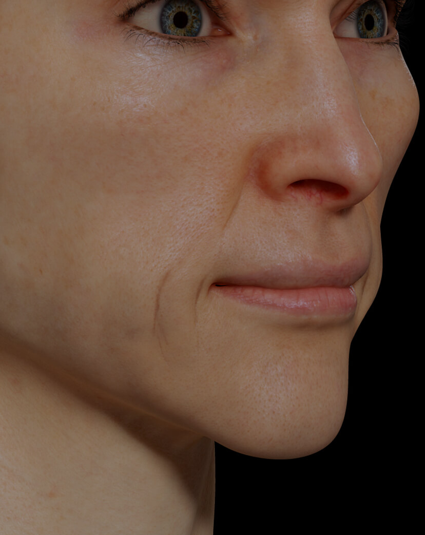 Clinique Chloé female patient with facial skin laxity treated with Sculptra injections or facial skin tightening