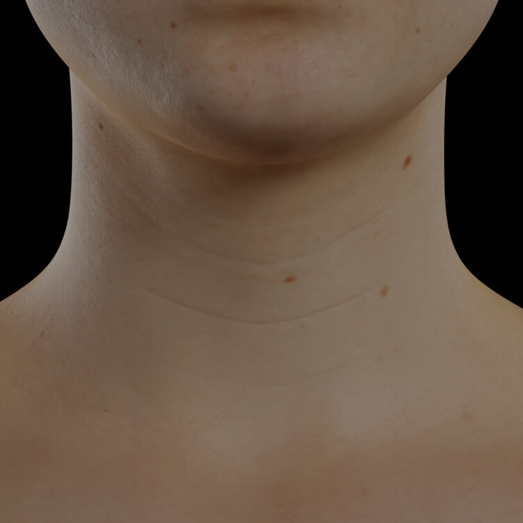 Clinique Chloé female patient with neck skin laxity treated with Skinboosters injections for neck skin tightening