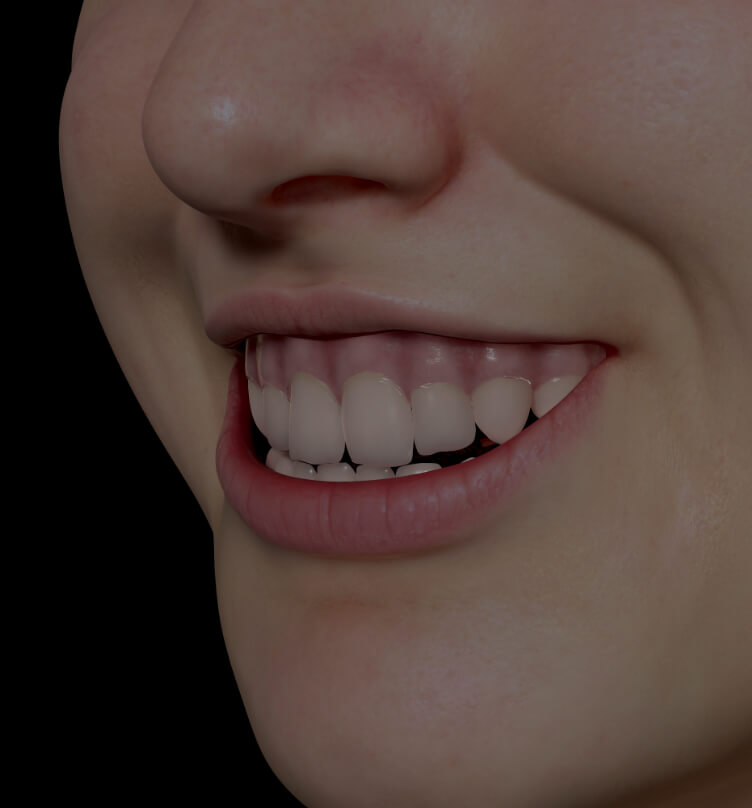 Patient à la Clinique Chloé montrant un sourire gingival