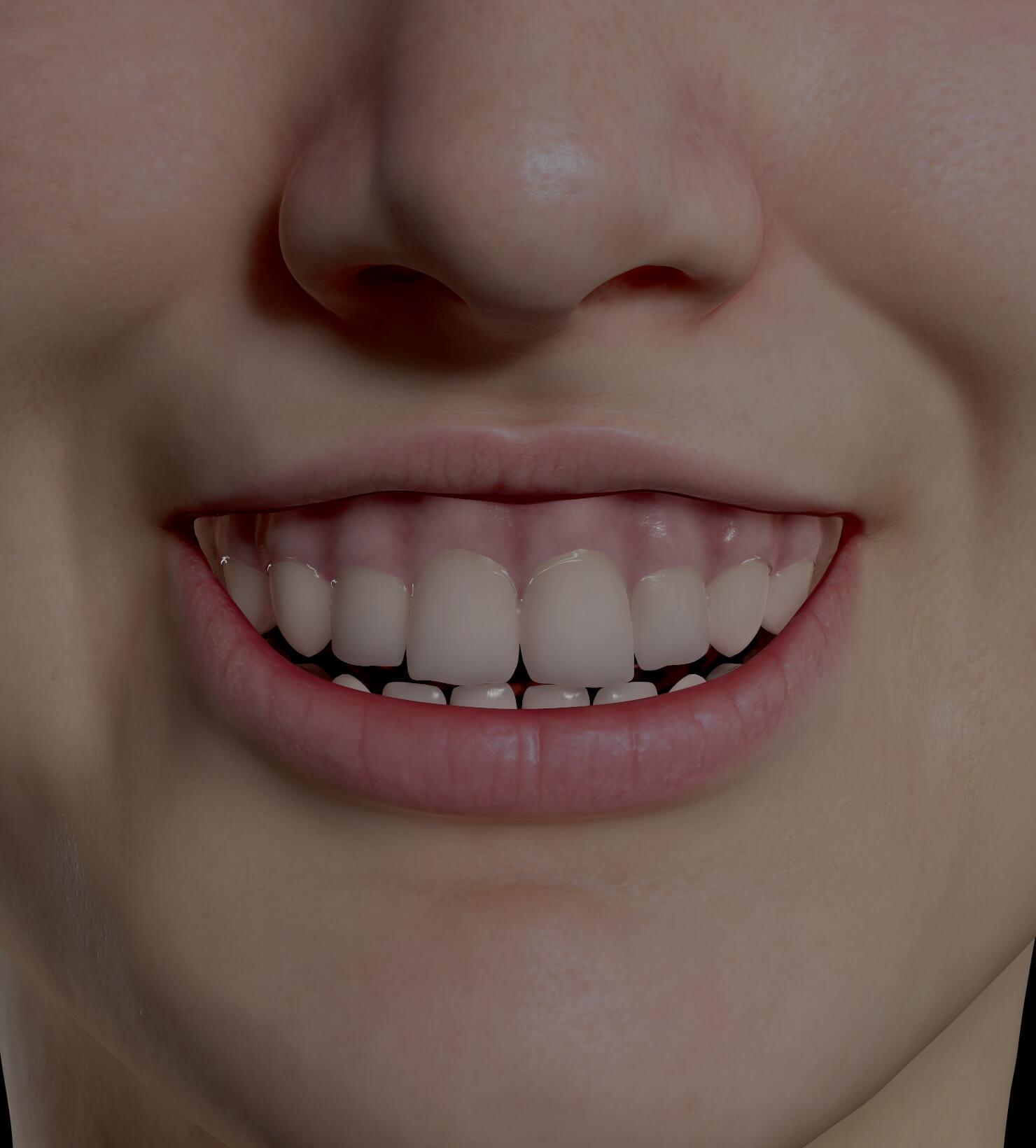 Patiente de la Clinique Chloé ayant un sourire gingival traitée avec des injections de neuromodulateurs