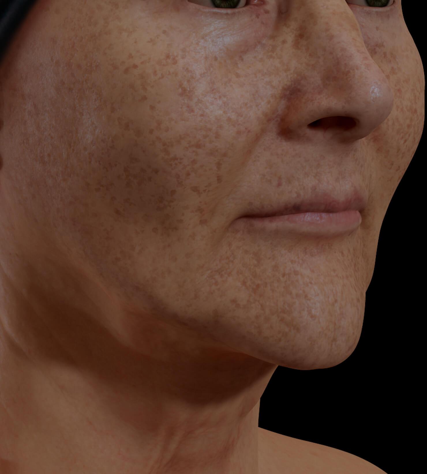 Patiente de la Clinique Chloé ayant des taches pigmentaires sur le visage traitée avec le photorajeunissement IPL