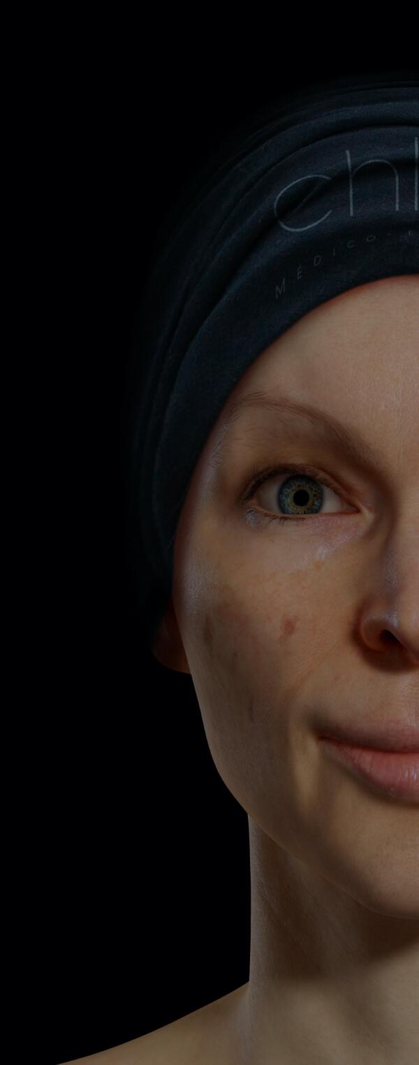 Patiente de la Clinique Chloé présentant des taches pigmentaires sur le visage
