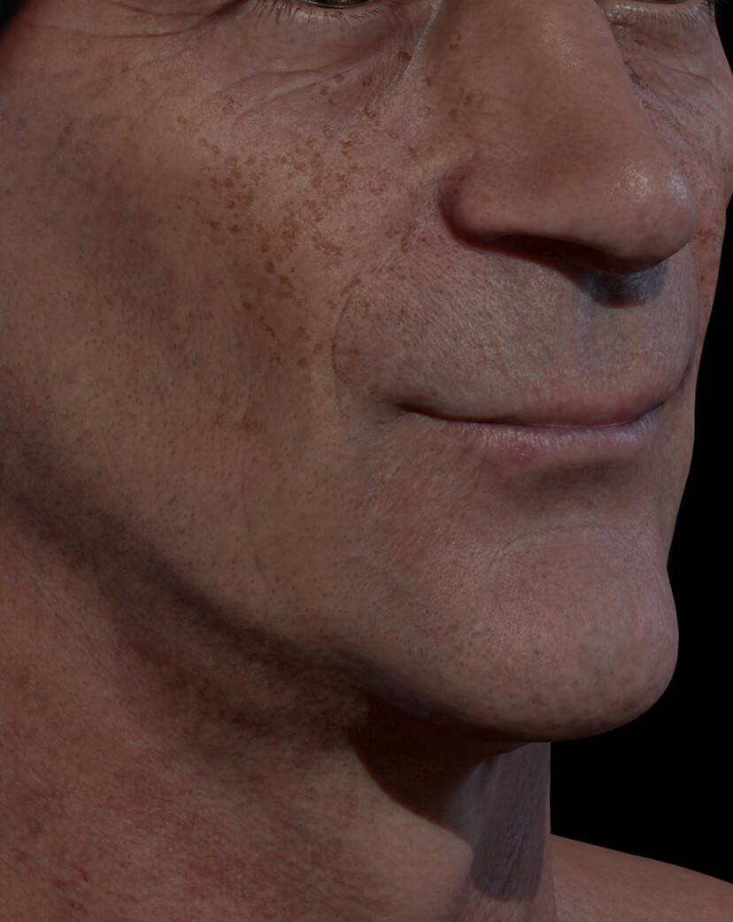 Patient de la Clinique Chloé ayant des taches pigmentaires sur le visage traité avec des peelings chimiques