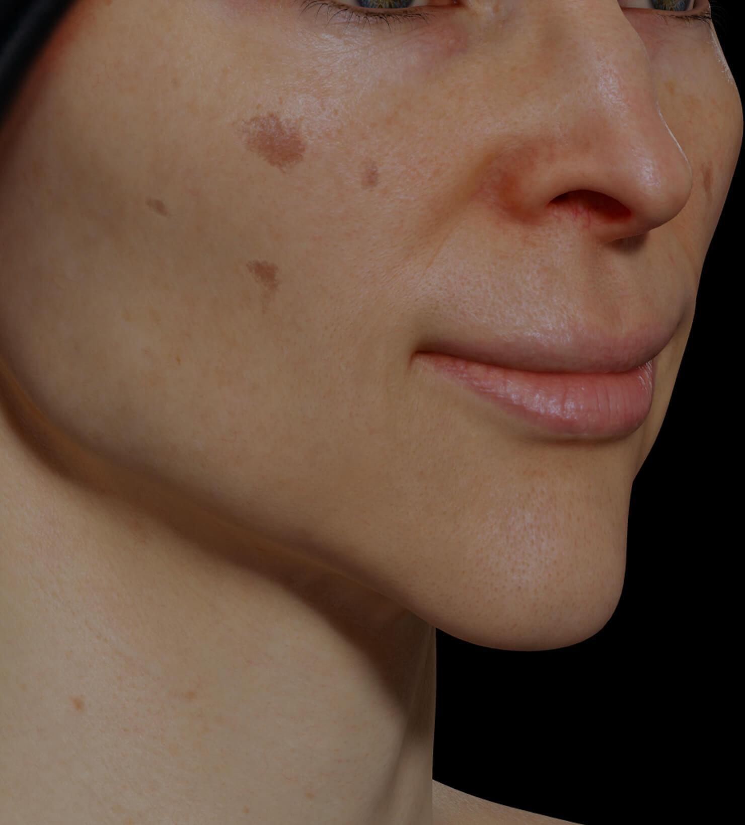 Patiente de la Clinique Chloé ayant des taches pigmentaires sur le visage traitée avec du microneedling