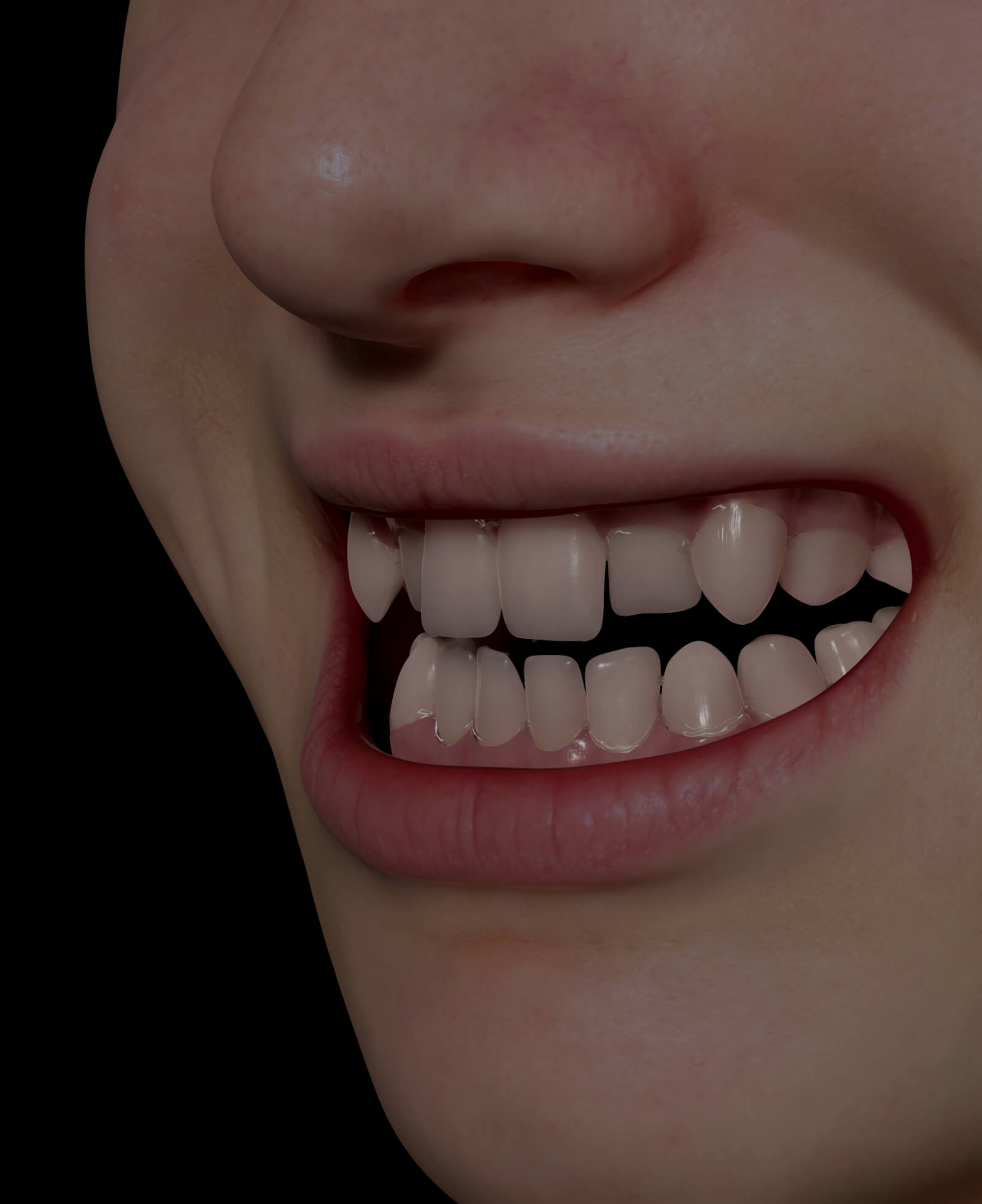 Clinique Chloé patient with misaligned teeth