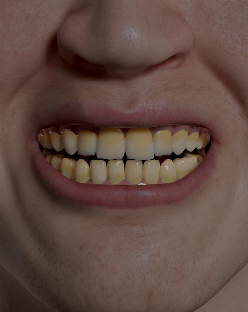 Clinique Chloé male patient with discoloured teeth treated with professional teeth whitening products