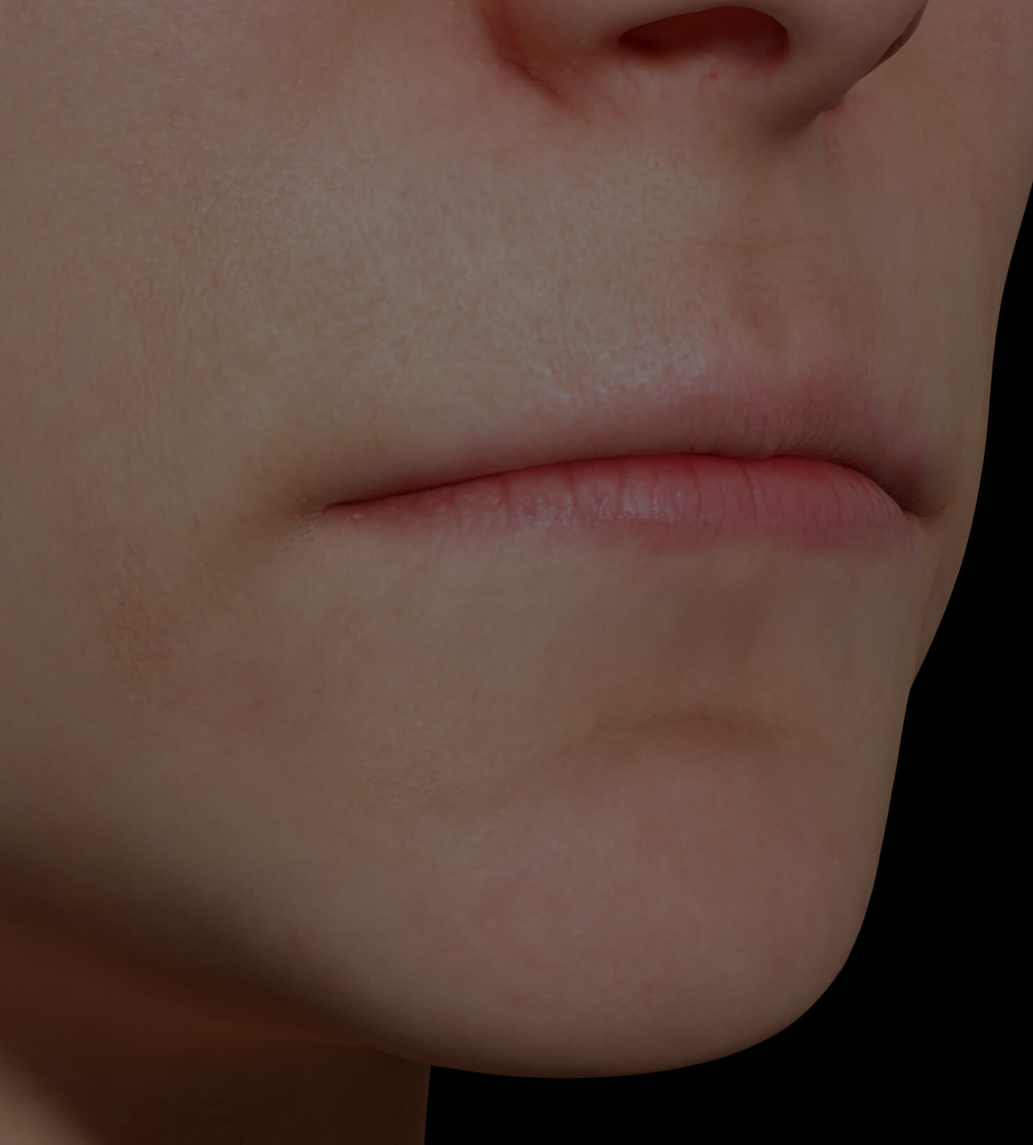 Clinique Chloé female patient with thin lips treated with dermal fillers for lip augmentation