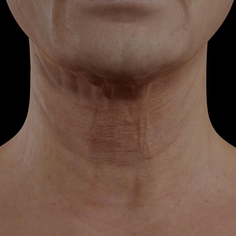 Patiente de la Clinique Chloé présentant du relâchement cutané dans le cou traitée avec le laser fractionné