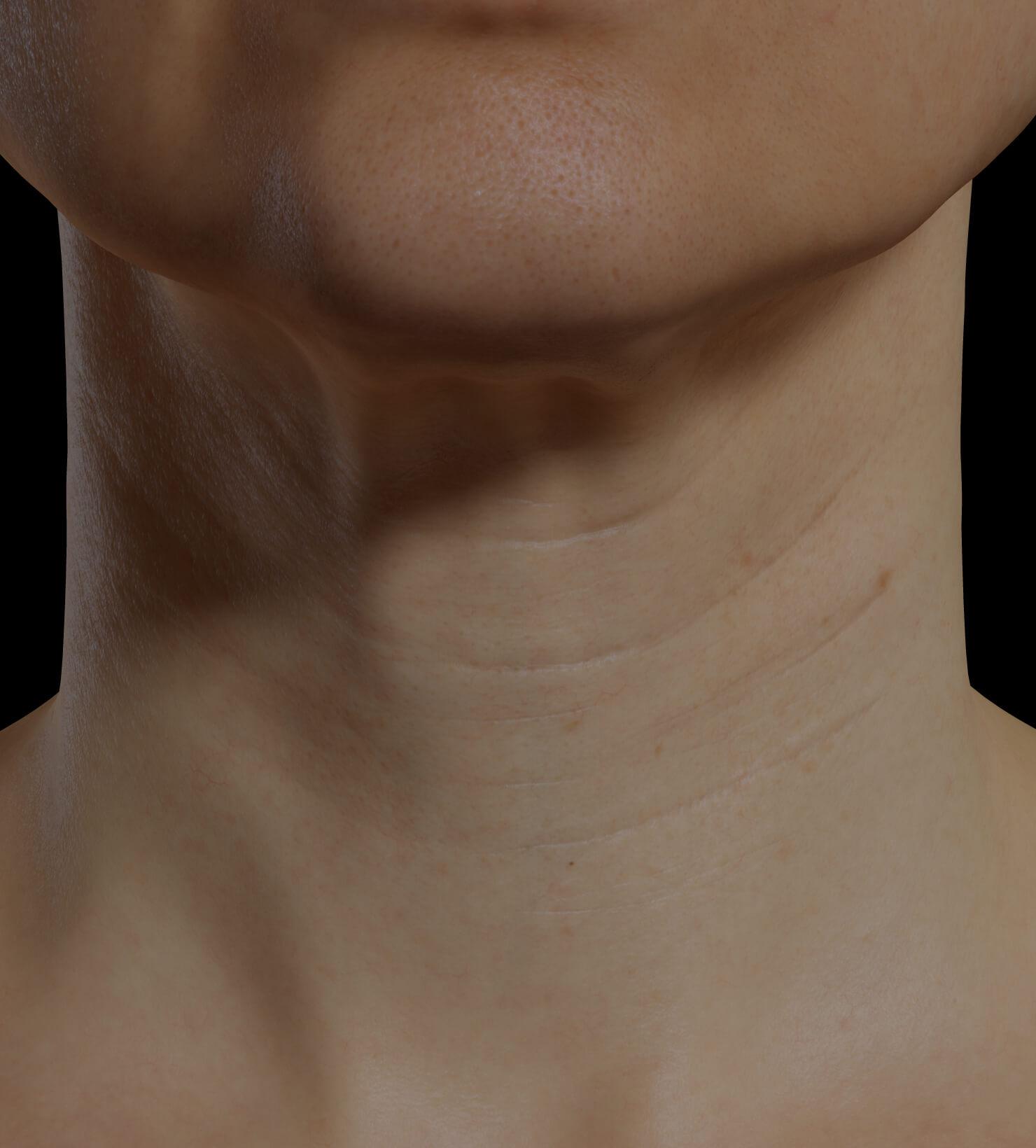 Patiente de la Clinique Chloé présentant du relâchement cutané dans le cou traitée avec la mésothérapie
