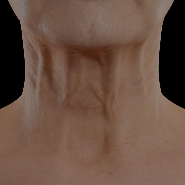 Patiente de la Clinique Chloé présentant du relâchement cutané dans le cou traitée avec des injections de neuromodulateurs