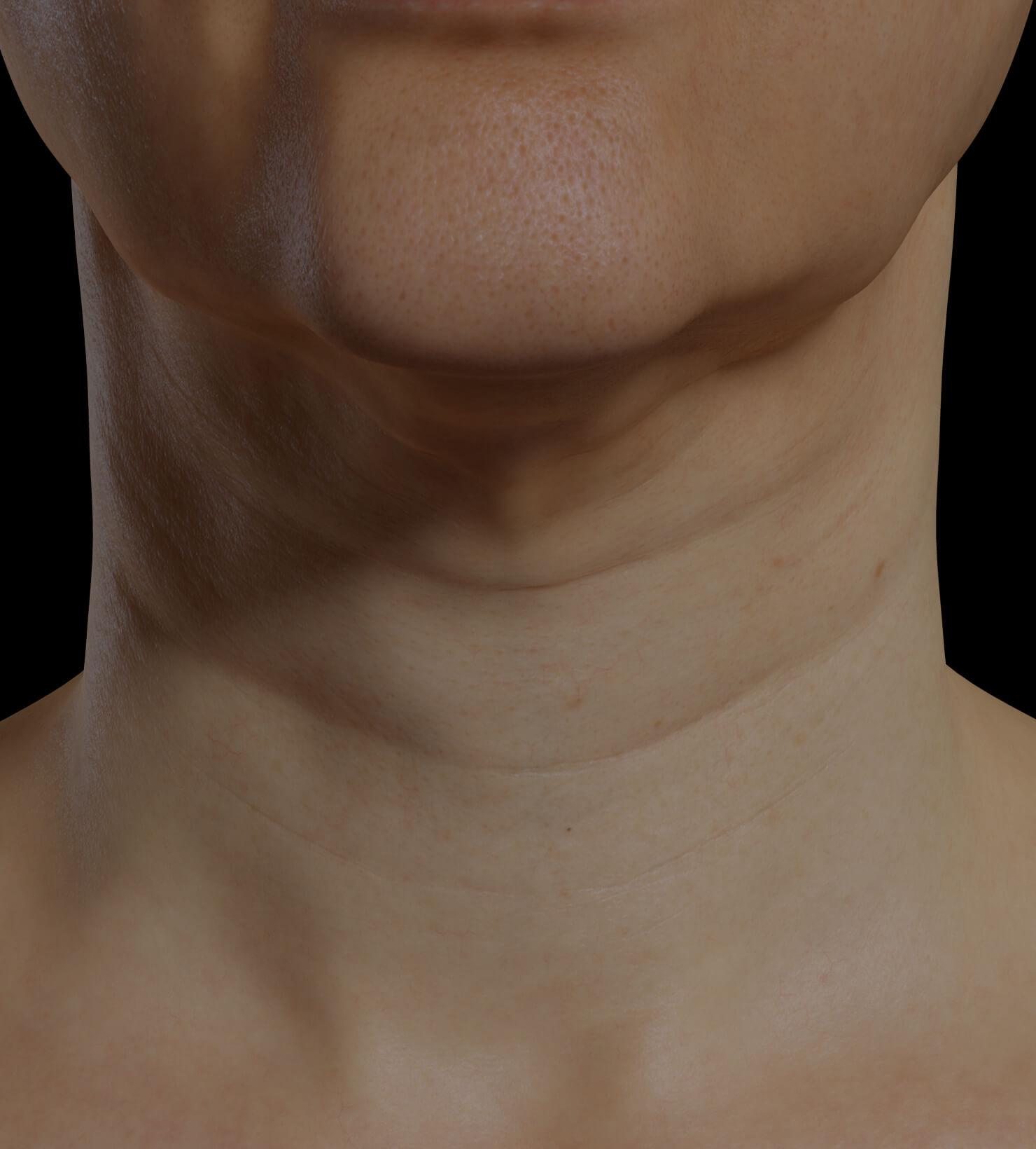 Patiente de la Clinique Chloé présentant du relâchement cutané dans le cou traitée avec le Profound RF