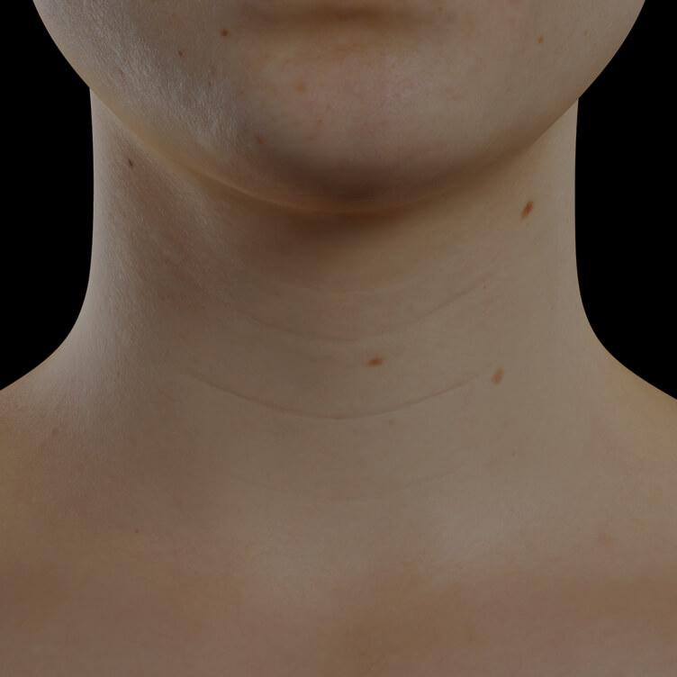 Patiente de la Clinique Chloé présentant du relâchement cutané dans le cou traitée avec des injections de Skinboosters