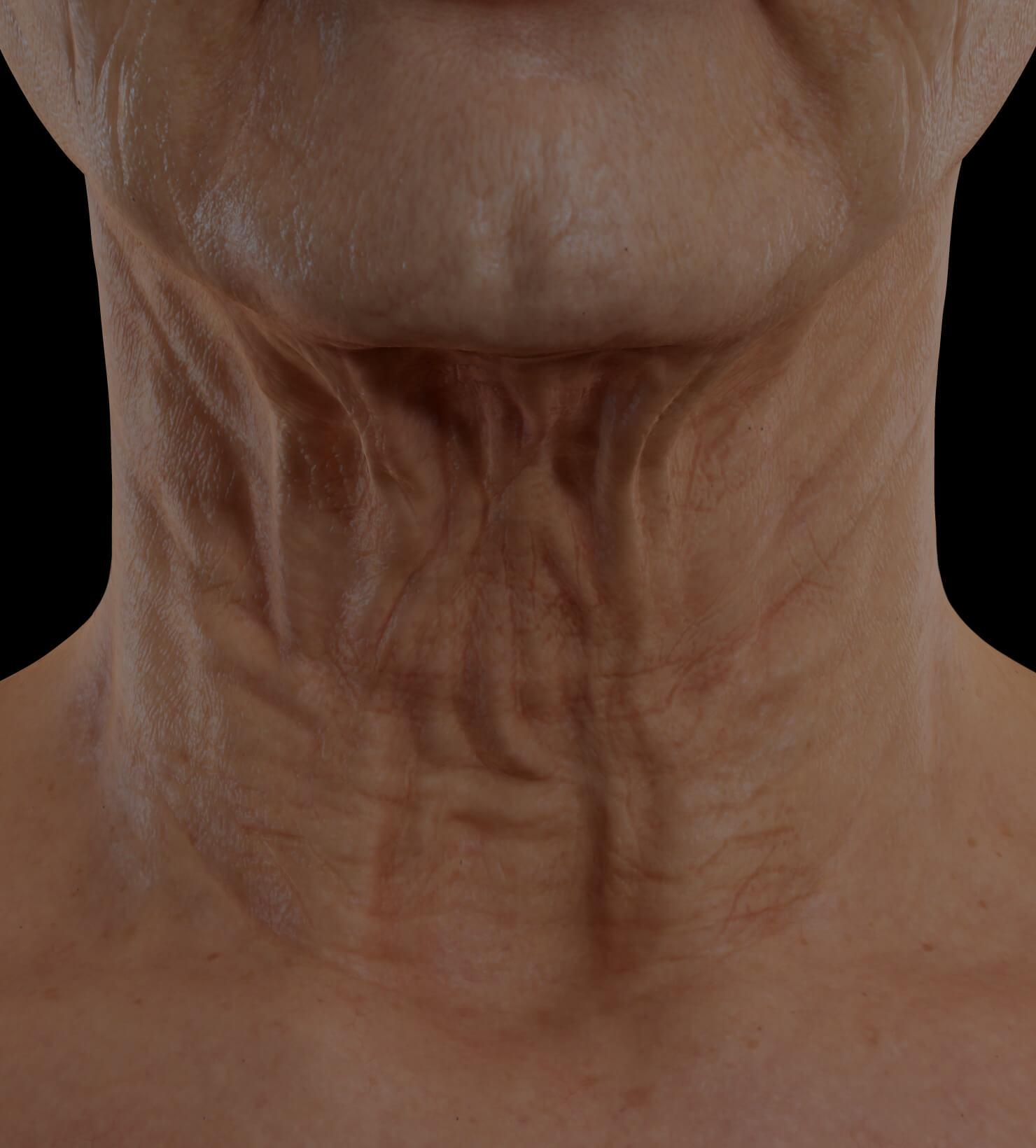 Patiente de la Clinique Chloé présentant du relâchement cutané dans le cou traitée avec le laser TightSculpting