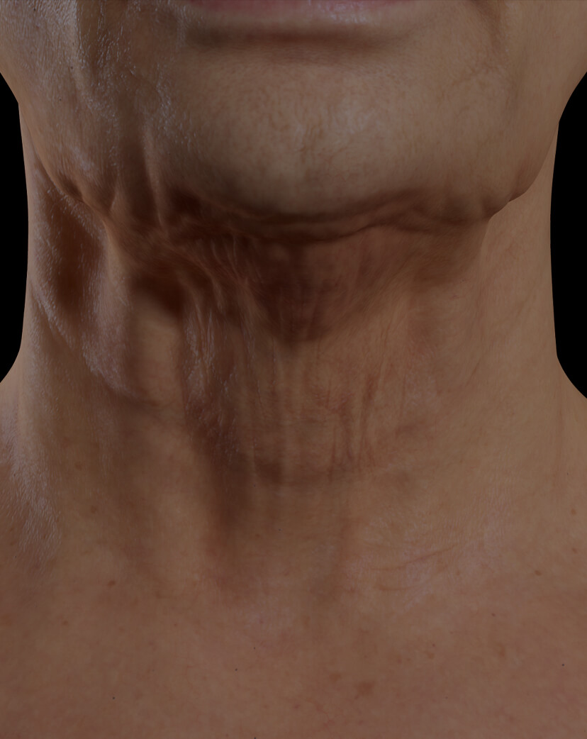 Patiente de la Clinique Chloé présentant du relâchement cutané dans le cou traitée avec le Venus Legacy