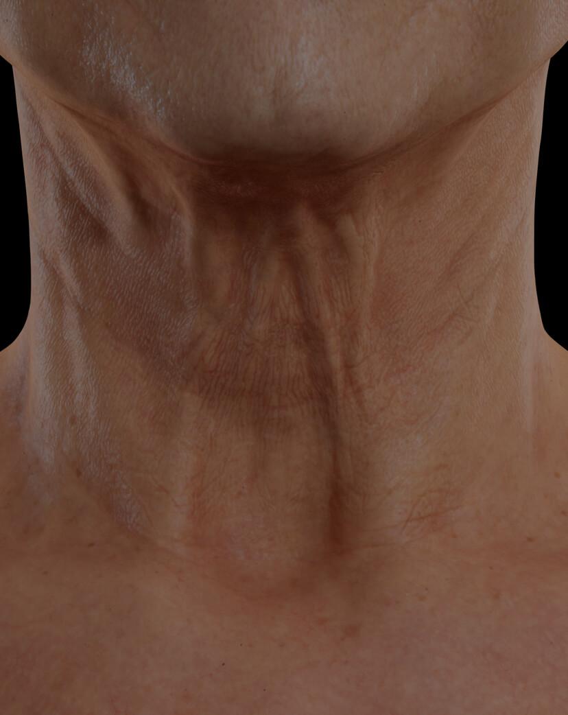 Patiente de la Clinique Chloé présentant du relâchement cutané dans le cou traitée avec le Venus Viva