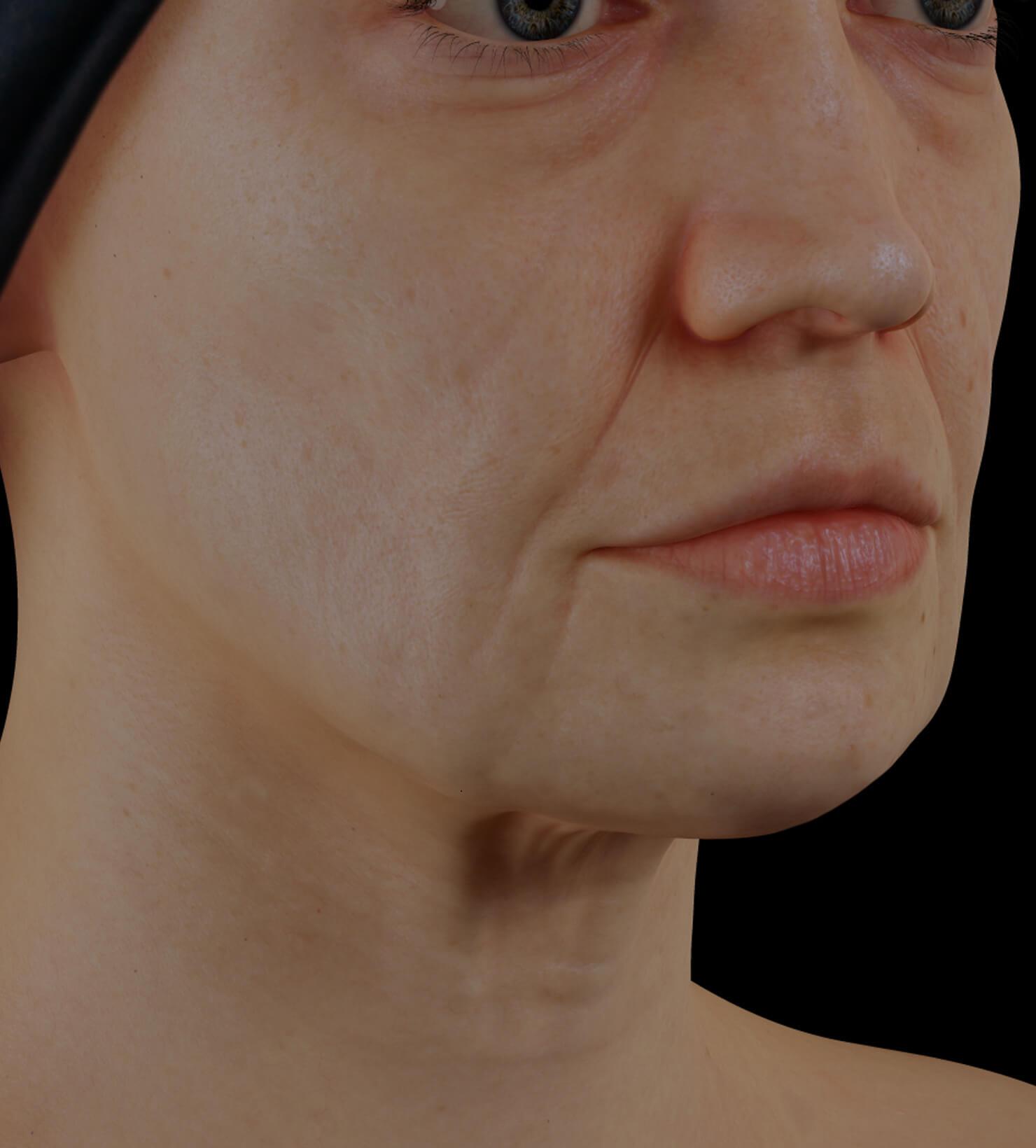 Patiente de la Clinique Chloé présentant un relâchement cutané du visage traitée avec des injections d'agents de comblement