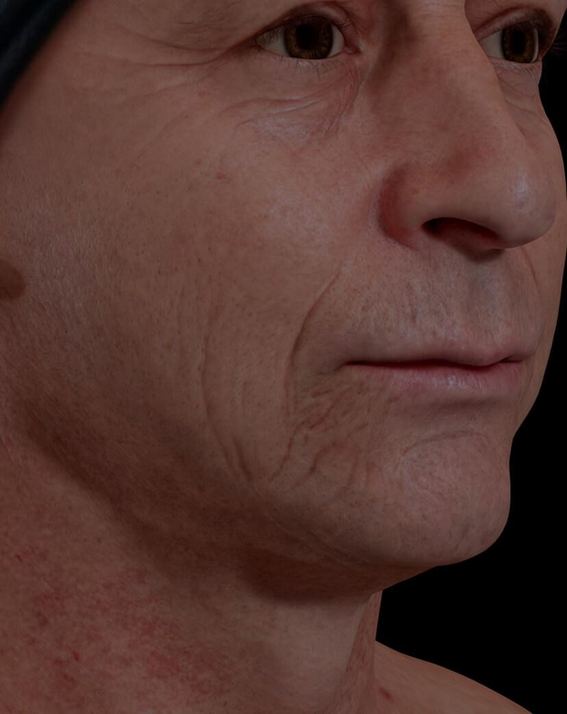 Patient de la Clinique Chloé présentant un relâchement cutané du visage traité avec le laser fractionné