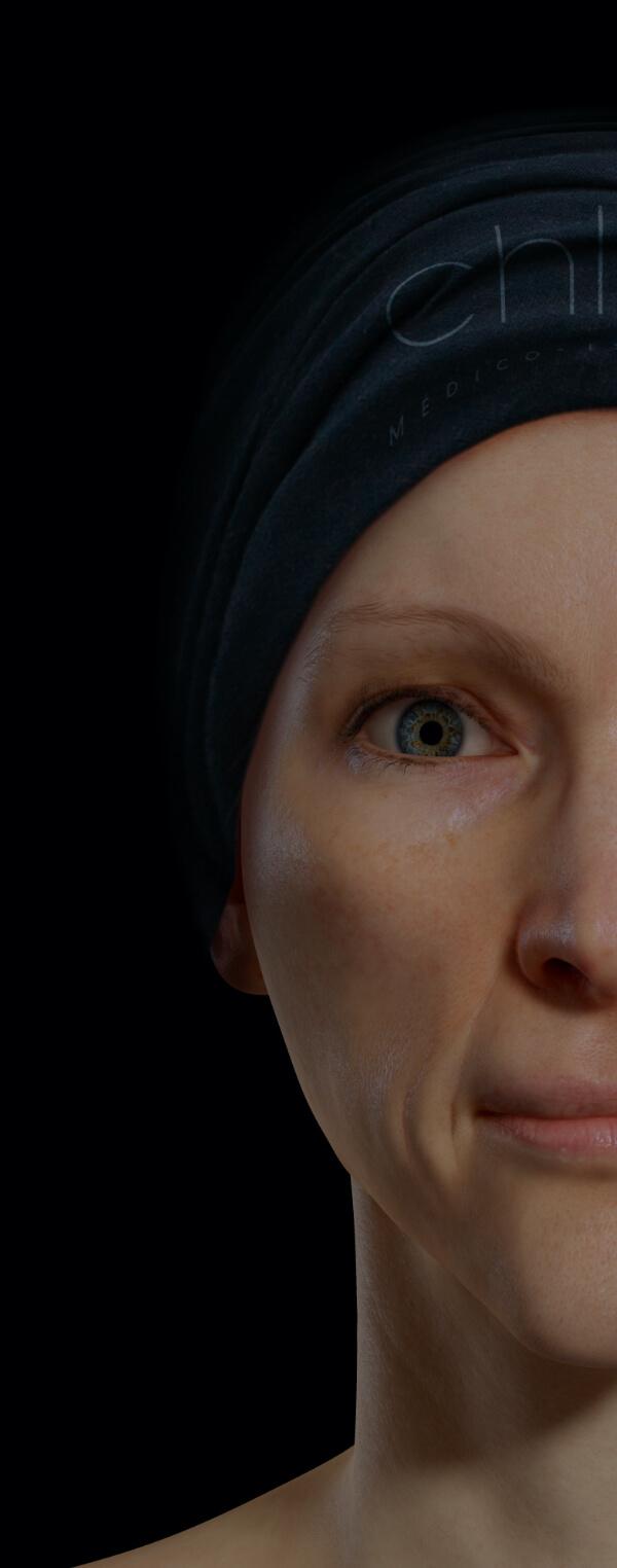 Patiente de la Clinique Chloé présentant une perte de tonus au niveau du visage