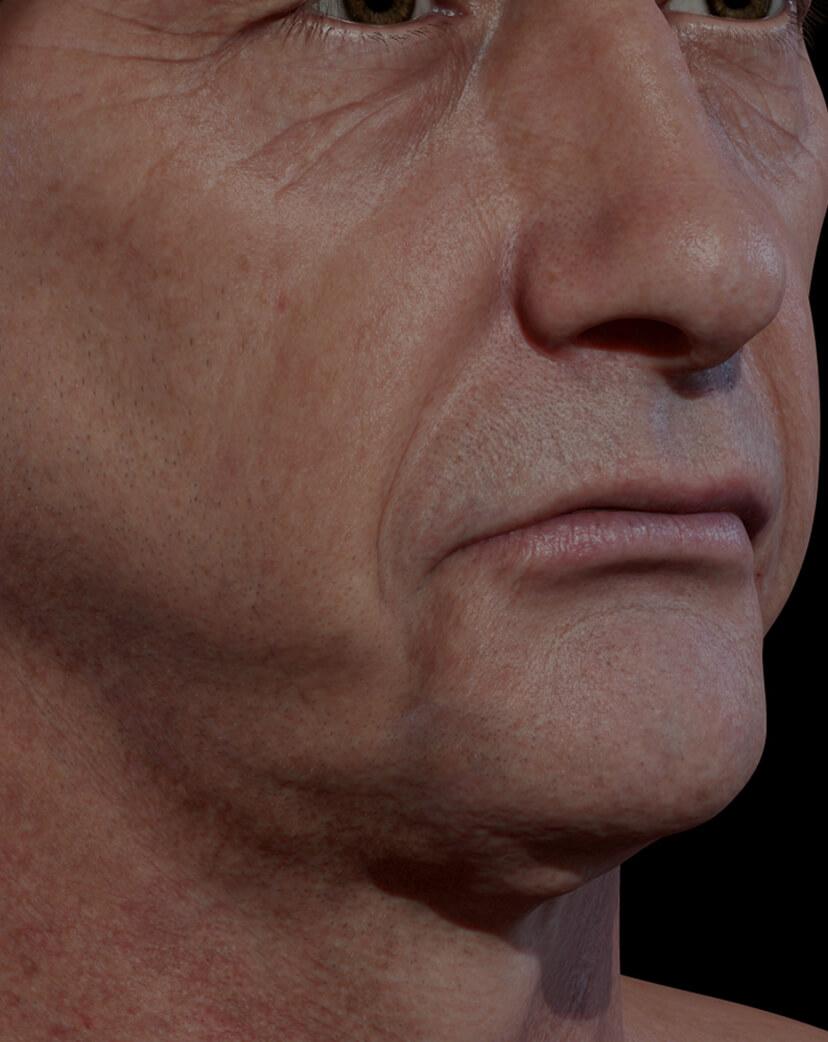 Patient de la Clinique Chloé présentant un relâchement cutané du visage traité avec le laser Fotona 4D