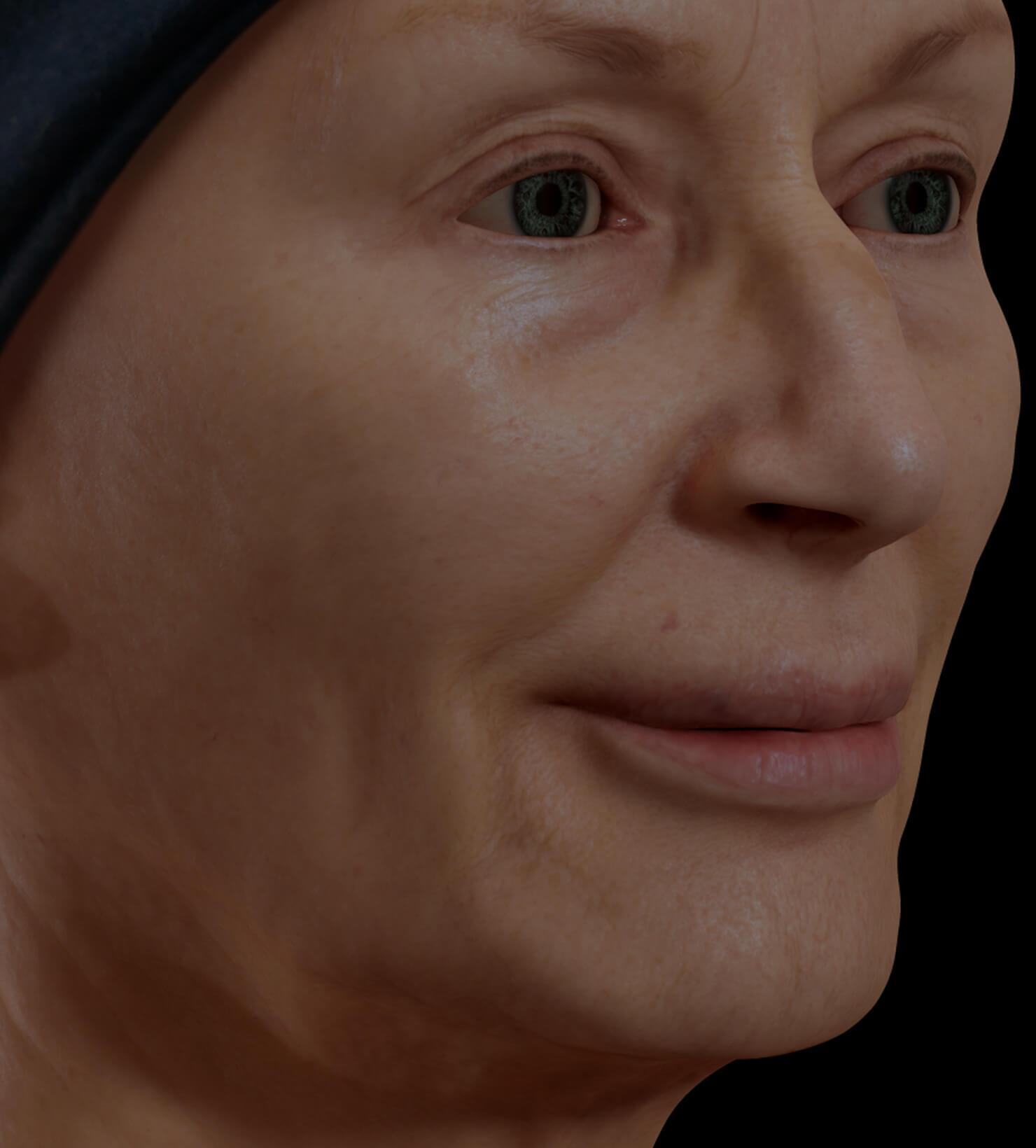 Patiente de la Clinique Chloé présentant un relâchement cutané du visage traitée avec le Profound RF