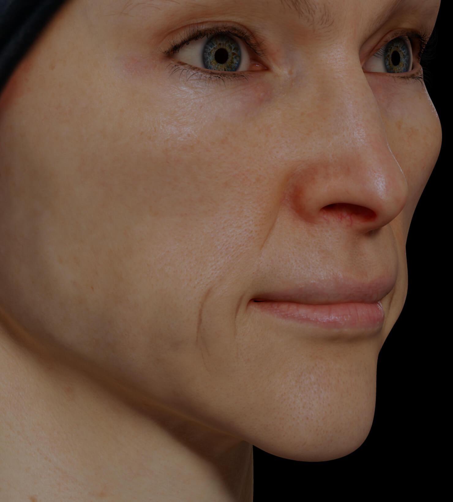 Patiente de la Clinique Chloé présentant un relâchement cutané du visage traitée avec des injections de Sculptra