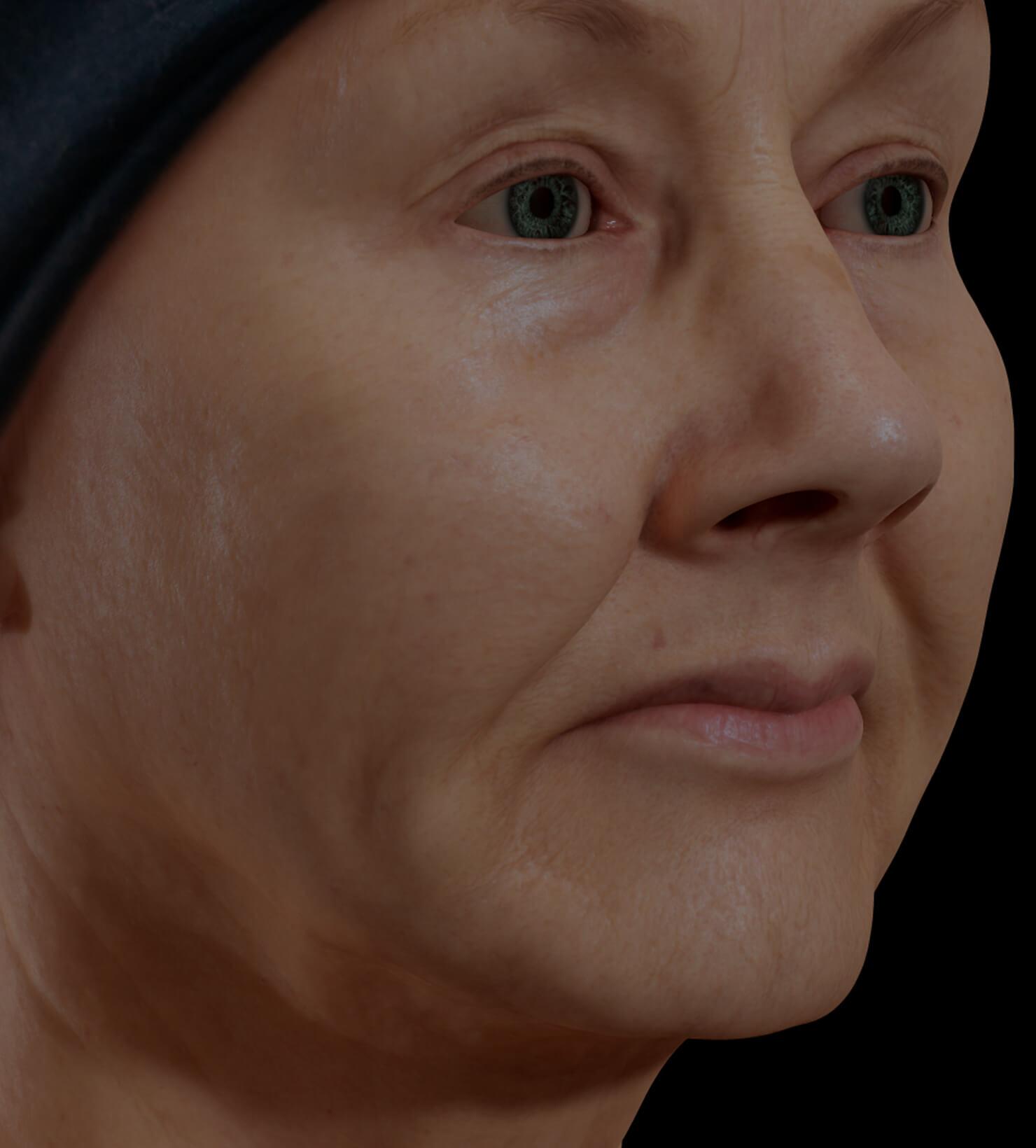 Patiente de la Clinique Chloé présentant un relâchement cutané du visage traitée avec le laser SmoothLiftin