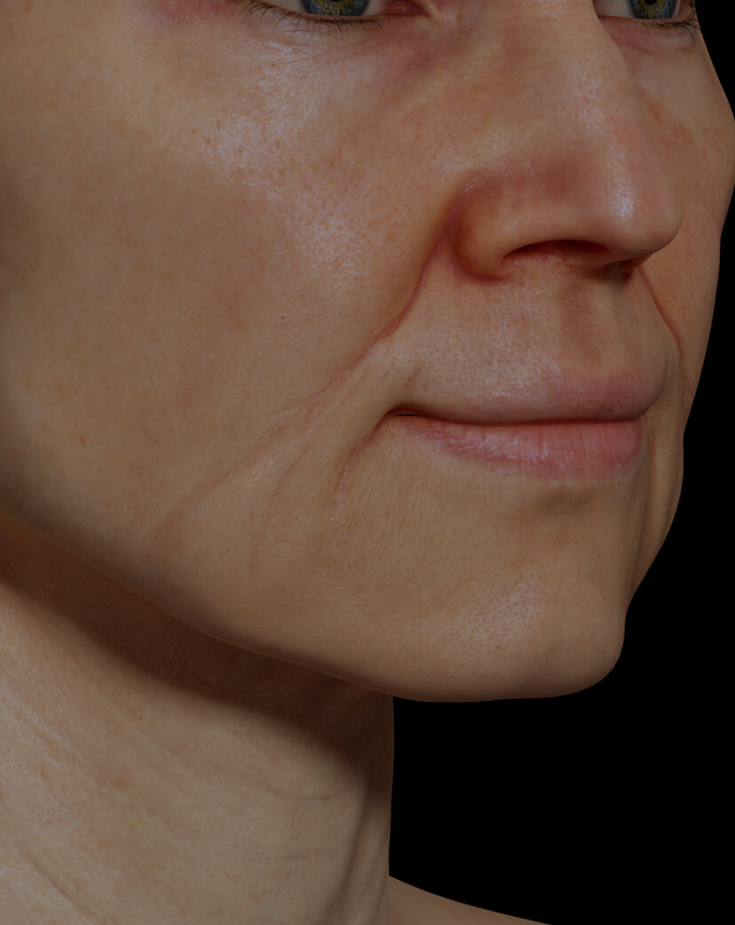 Clinique Chloé female patient with facial fine lines and wrinkles treated with the Fotona 4D laser for wrinkle reduction