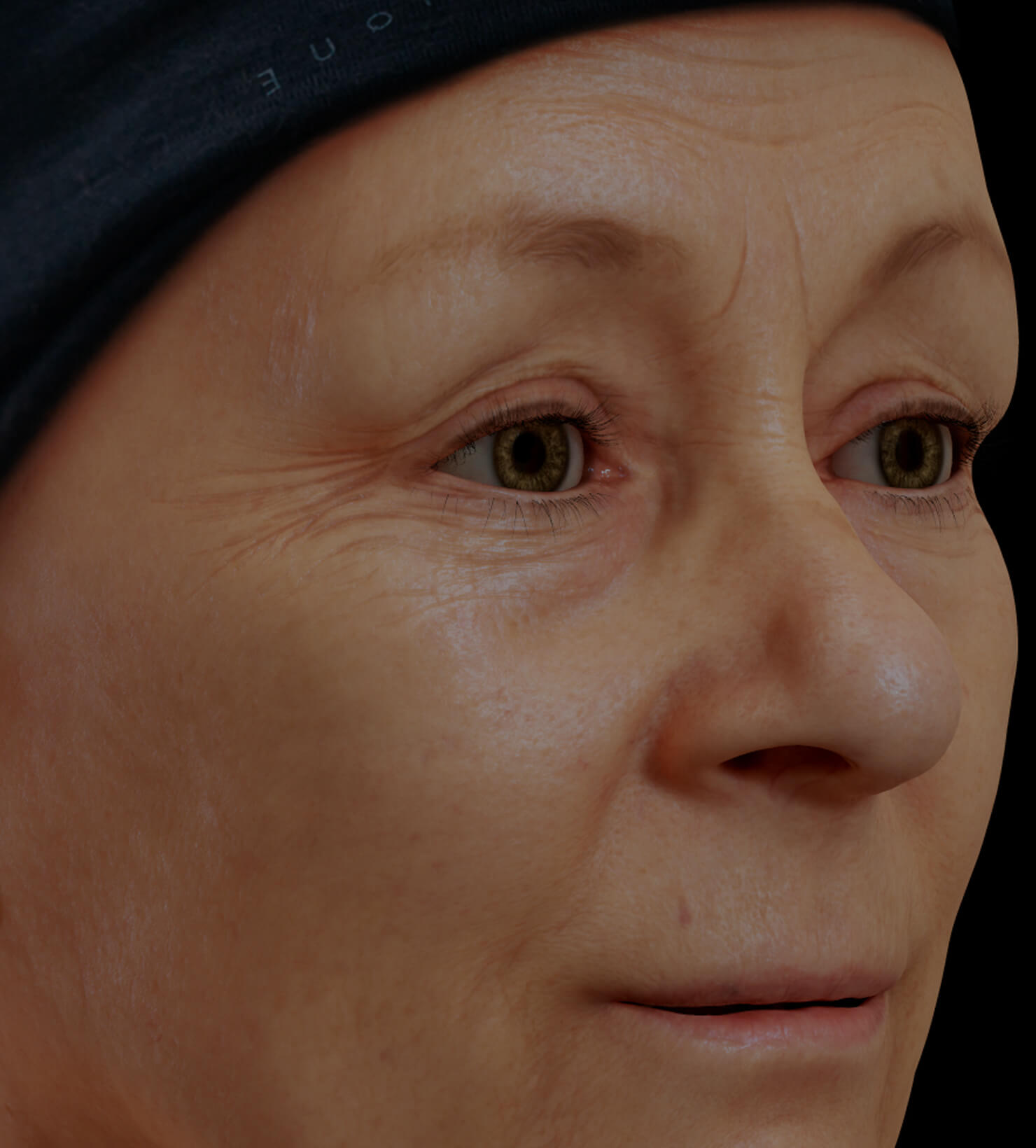 Clinique Chloé female patient with facial fine lines and wrinkles treated with mesotherapy for wrinkle reduction
